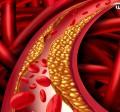 افزایش کلسترول خون