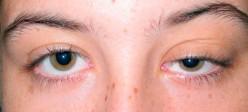 میاستنی گراویس  (Myasthenia gravis)