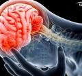 اختلال پانیک | حمله هراس