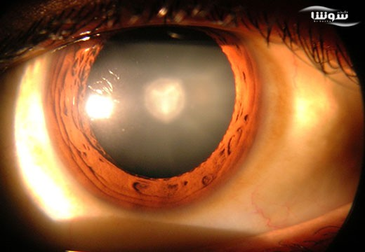 آب مروارید یا کاتاراکت  (cataract)