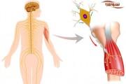 بیماری اسکلروزیس آمیوتروفیک جانبی | ALS