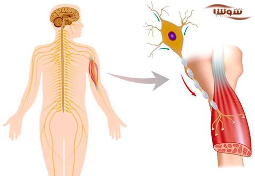 بیماری  ALS | اسکلروزیس آمیوتروفیک جانبی | Amyotrophic lateral sclerosis