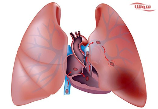 آمبولی ریه (pulmonary embolism)