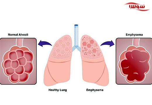 آمفیزم (Emphysema)