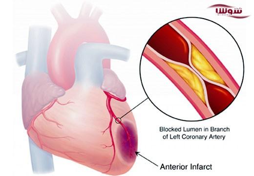 درد قفسه سینه یا آنژین (Angina)