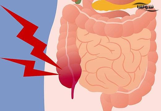 آپاندیسیت (Appendicitis)