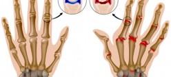 آرتریت روماتوئید (Rheumatoid arthritis)