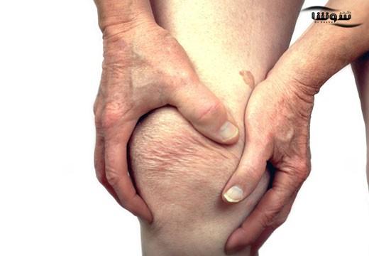 آرتریت عفونی یا آرتریت سپتیک (Septic arthritis)