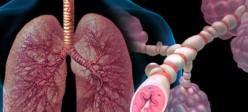 آسم (Asthma)