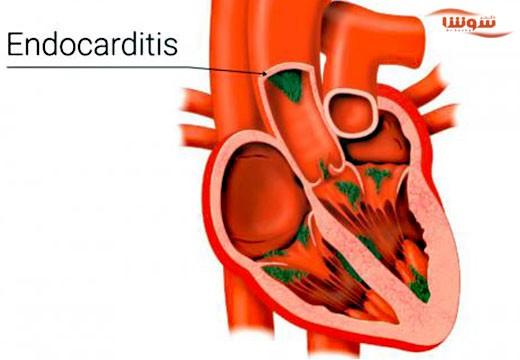 اندوکاردیت باکتریایی  (Endocarditis)