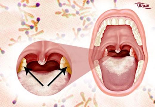 دیفتری (Diphtheria)