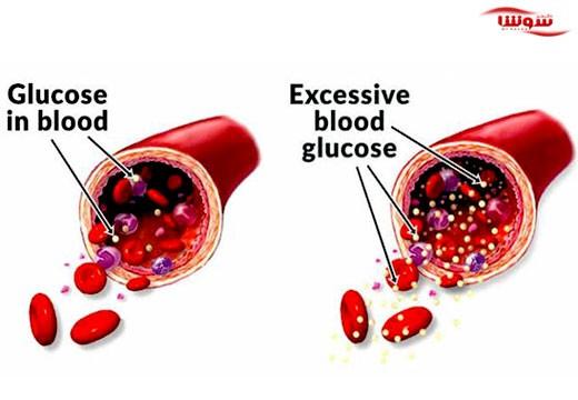دیابت نوع ۲ (Type 2 diabetes)