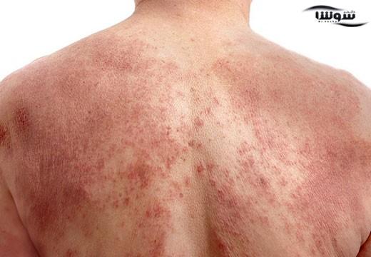 اگزما (Eczema)