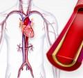 فشار خون بالا | هیپرتانسیون