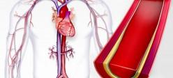 فشار خون بالا | هیپرتانسیون (Hypertension)