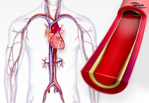 فشار خون بالا   هیپرتانسیون (Hypertension)