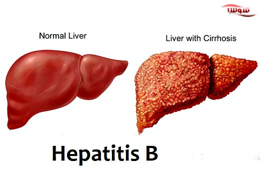 هپاتیت Hepatitis B | B