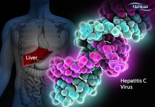 هپاتیت Hepatitis C | C