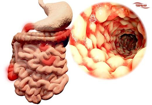 بیماری التهابی روده | کرون (Crohns)