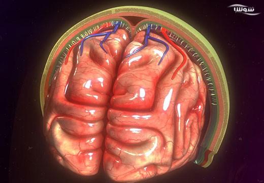 مننژیت  (meningitis)