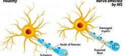 ام اس یا مالتیپل اسکلروزیس (Multiple sclerosis)