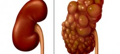 نارسایی مزمن کلیوی (Chronic renal failure)