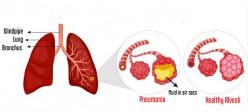 پنومونی | ذات الریه | سینه پهلو  (Pneumonia)