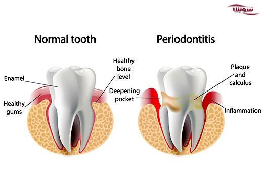 پریودنتیت  (periodontitis)