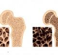 پوکی استخوان | استئوپروز