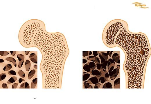 پوکی استخوان | استئوپروز (Osteoporosis)