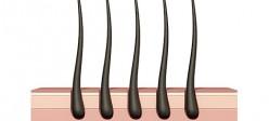 رشد موهای زائد در بدن یا هیرسوتیسم