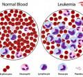 سرطان خون ( لوکمی یا لوسمی )