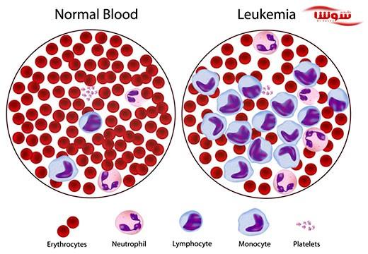 سرطان خون | لوکمی | لوسمی (Leukemia)