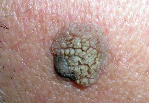 عوامل خطر یا ریسک فاکتورها در سرطان پوست