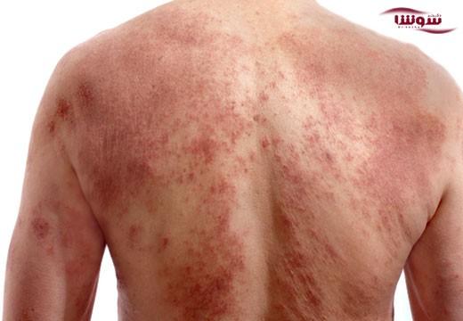 سرطان پوست (skin cancer)