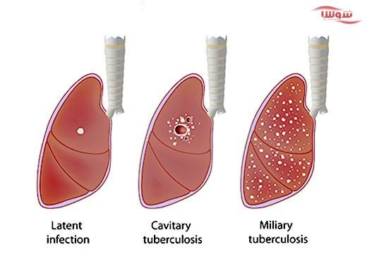 سل | (Tuberculosis (TB