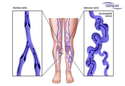 واریس (varicose-veins)