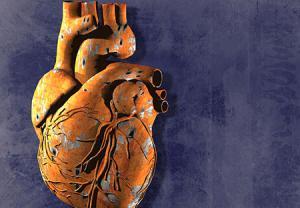 افزایش ریسک ابتلا به بیماری شدید قلبی
