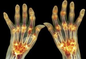 کمبود ویتامین D و افزایش ریسک ابتلا به آرتریت پسوریاتیک