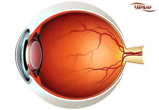 پیر چشمی (Presbyopia)
