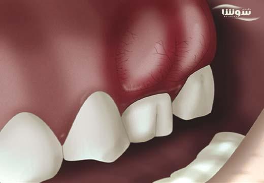 آبسه دندان (tooth-abscess)