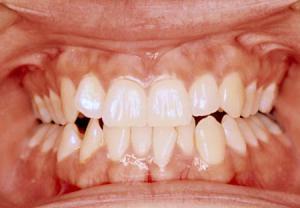 دندان قروچه و خراب شدن دندان - دکتر سوشا