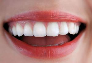 توصیه نهایی برای داشتن لبخندی زیبا - دکتر سوشا