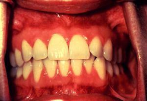 تغییر در دهان نشانه سرطان دهان - دکتر سوشا