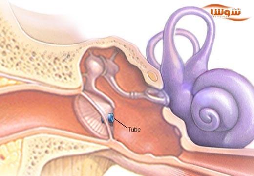 عفونت گوش میانی (middle ear infection)