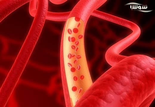 سندروم کارسینوئید  (Carcinoid syndrome)
