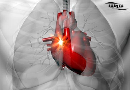 تپش قلب  (heart palpitations)