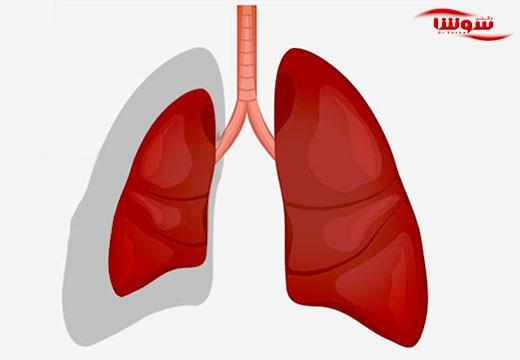 آتلکتازی (atelectasis)