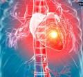 حمله قلبی | سکته قلبی | انفارکتوس قلبی