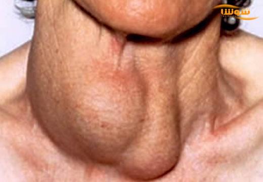 تیروئیدیت هاشیموتو  (Hashimoto's thyroiditis)